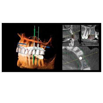 3D treatment software