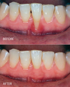 before and after gum recession treatment