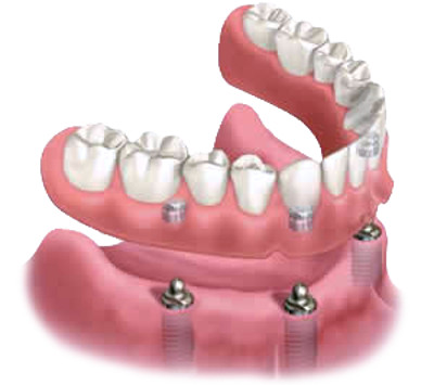 implant supported snap in dentures