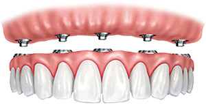 fixed-in implant-supported teeth